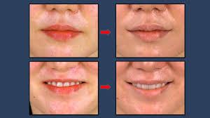 mouth corner lift korea plastic surgery