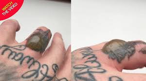 Tattoo Nightmare As Mans Finger Is Blistered
