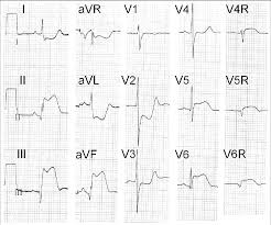 Ecg Shows Inferoposterior St Elevation Myocardial Infarction Of The