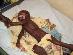 Image result for malnutrition patient