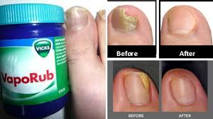 home remedy for toenail fungus how to get rid of toenail fungus fast and naturally