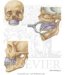 Le Fort Fracture Facial Trauma Repair Of Le Fort I Fracture
