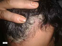 Shampooing pour psoriasis du cuir