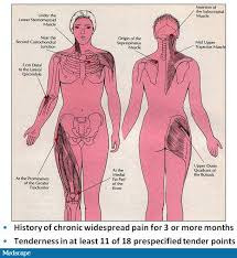 Fibromyalgia Tender Points Chart Fibromyalgia Articles American Rsdhope