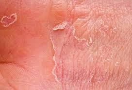 Rash 101 The Most Common Types Of Skin Rashes Treatment