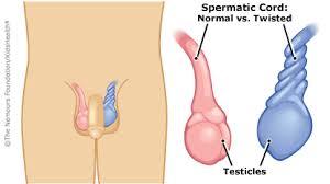 testicular torsion. testicular_torsion_illustration testicular torsion