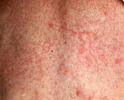 Pictures of Skin Rashes | LoveToKnow