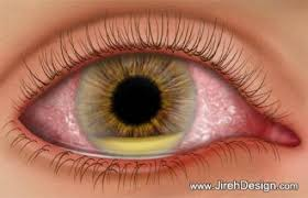 endophthalmitis oog
