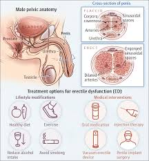 ED treatment with penis pumps