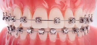 Orthodontics Four Corners Orthodontics Dental