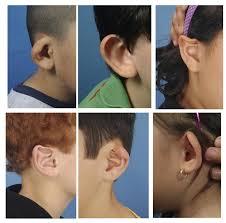 Ear Molding Photos Successful Ear Molding In New York Ny