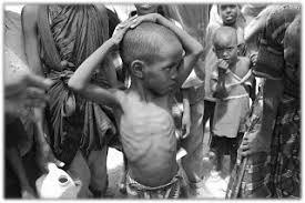 starving white child. Exellent White On Starving White Child M