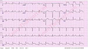 Ecg Case 34 Question 1 Answer Learntheheart Com