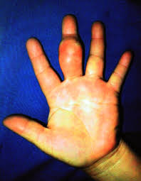 giant lipoma of the third finger of the