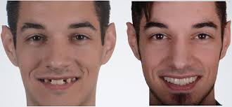 Some employers offer private dental plans for employees, so check if this is an option. I Will Never Have A Perfect Smile National Foundation For Ectodermal Dysplasias