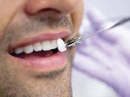 carillas dentales cuidado con las carillas dentales elpopular pe