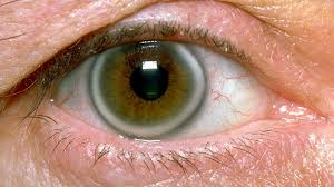 Image result for fat deposits - cholesterol under cornea /pics