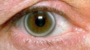 Image result for fat deposits - cholesterol under cornea /pics
