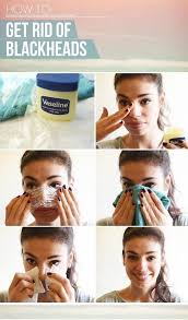 how to get rid of blackheads diy luxury blackhead removal life s of how to