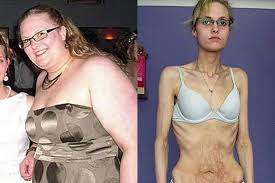real anorexic people. Exellent Anorexic Lauren Brudenell Before And With Anorexia In Real Anorexic People