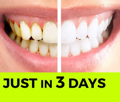 baking soda tip how to whiten your teeth naturally