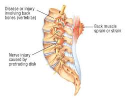 Done plenty of pork ribs, done short ribs, never done dino ribs. Back Pain Guide Causes Symptoms And Treatment Options