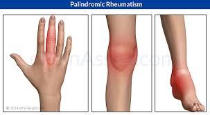 pre arthritis symptoms