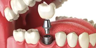 Image result for free picture of teeth and gums