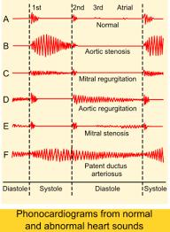 Narrow Pulse Pressure Chart Heart Murmur Wikipedia