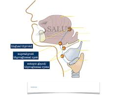 Thyroid Anatomy Article Salus Sonography