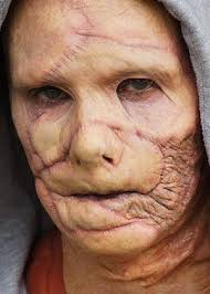 burn victim trauma prosthetic