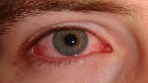 10 natural home remedies for burning eyes from allergies