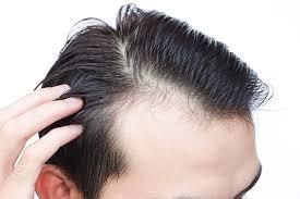 デコハゲさん必見おでこが広い人に似合う髪型10選
