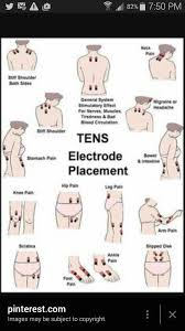 Placement Chart For Tens Pads Health Fibromyalgia