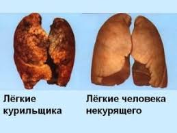 Факторы алкоголизма и курения Курение и легкие
