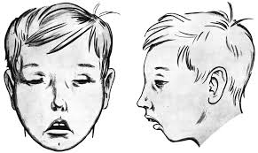 Image result for adenoid faces