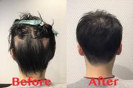 円形脱毛症をカットで目立たなくする髪形のご紹介