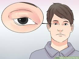 conjunctivitis wearing makeup image led diagnose pink eye step 1 have you