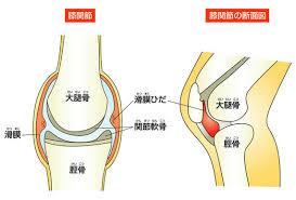 「膝が腫れる」の画像検索結果