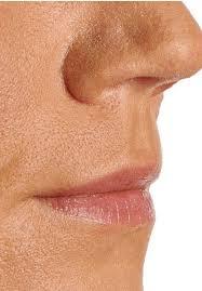 vienna lip correction for full lips