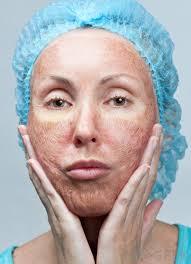 retinol and dry skin