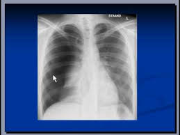 Chest X Ray Interpretation Pneumothorax
