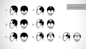 Hair Loss In Men Ilter Clinic