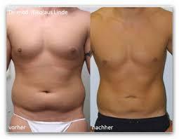 Fettabsaugen männer bauch kosten