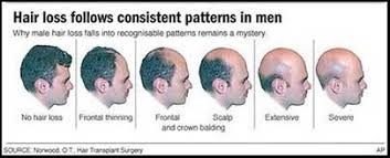 Male Pattern Baldness Cure Best 48 Effective Things You Can Do To Accept Baldness Gracefully