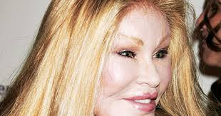 donatella versace celebrity plastic surgery disasters pictures cbs news