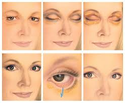 eyelid surgery called blepharoplasty or eyelid lift is a cosmetic surgery procedure designed to get rid of crepey eye skin drooping eyelids