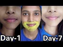 remove pigmentation dark patches