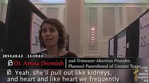Partial Birth Abortion Plan Planned Parenthood Tx Abortion Apprentice Taught Partial Birth