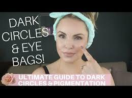 ultimate guide on dark circles eye